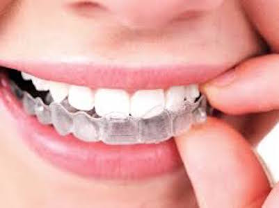 Closeup of a woman putting in a tray of invisible braces for her top teeth.