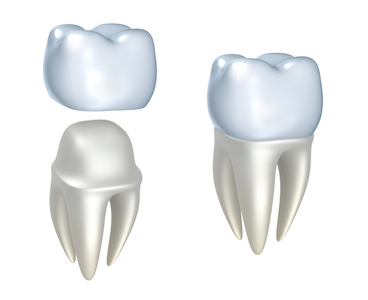 Image how a dental crown fits over a tooth.