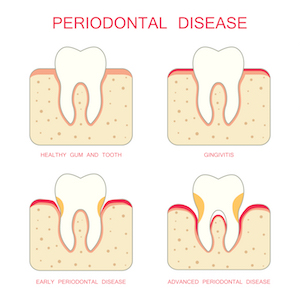 Image of how periodontal disease, or gum disease, affects the gum line around the tooth allowing bacteria to compromise the tooth integrity.