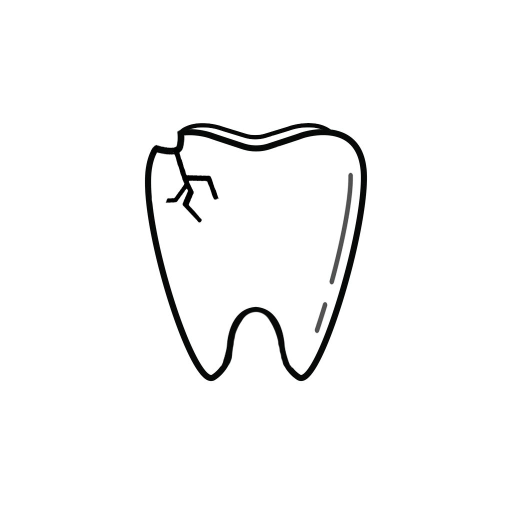 Boca Raton FL Dentist | I Chipped a Tooth! What Can I Do?